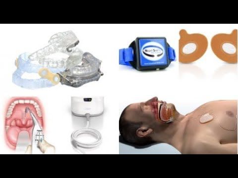 [Video] Sleep apnea treatment varies depending on the severity of the symptoms of this particular condition.
