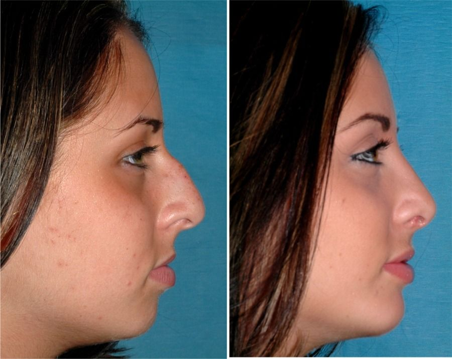 What Age Can You Have A Nose Job? Nose Job for Teenagers