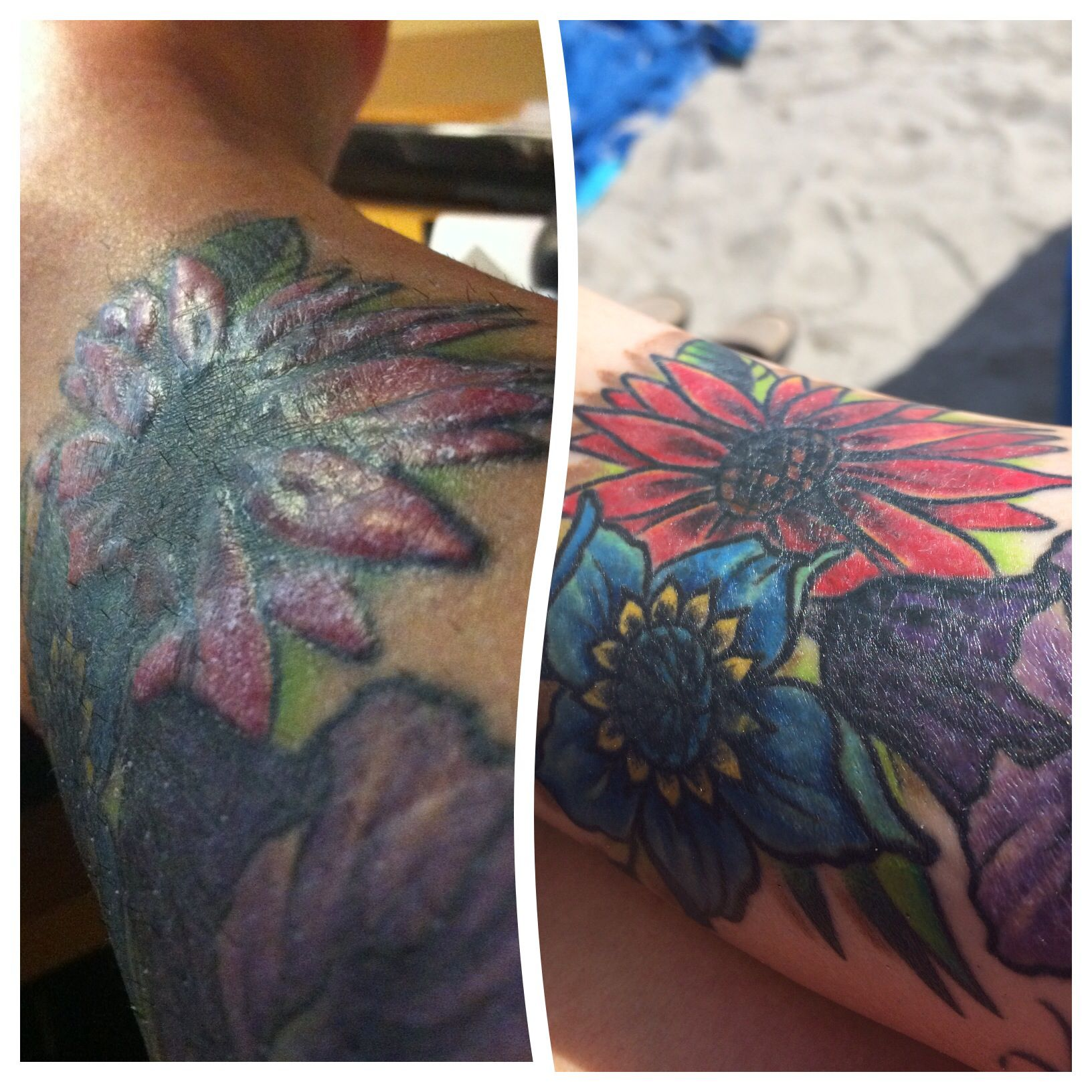 Tattooallergy Before And After Three Months Of Steroid Shots Into Tattoo For Red Ink Allergy Tattoo Allergy Red Ink Tattoos