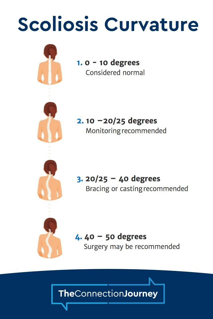 Our Specialists Determine Whether A Child Would Benefit From Scoliosis Surgery Based On The Degree Of The Chi Scoliosis Scoliosis Treatment Scoliosis Exercises