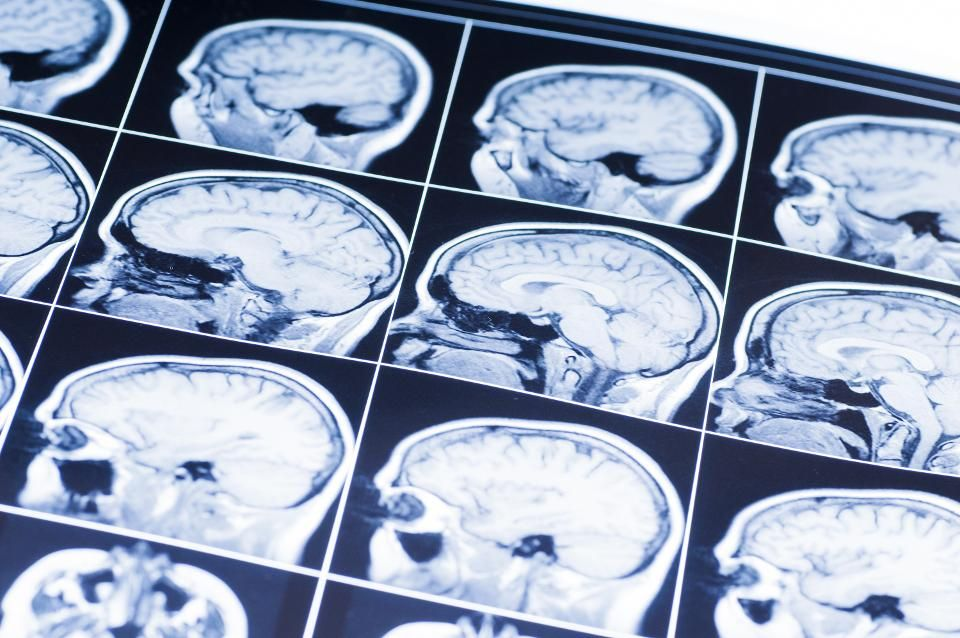 Teens With Autism Brain Injuries And >> Investors Venture Boldly Into Neuroscience Pharma News Autism