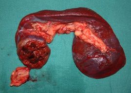 image gallery spleen cancer