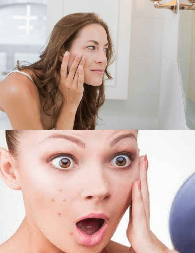 Fast Waus On How To Get Rid Of Blind Pimples How To Get Rid