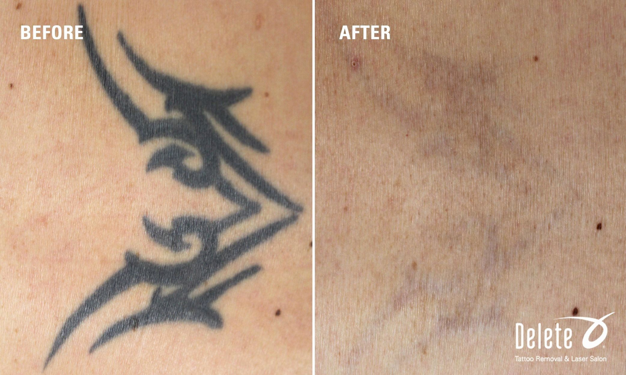 Can You Get A Tattoo Removed Inspirational The Valley S Best Tattoo Removal With The Exclusive Picoway In 2020 Laser Tattoo Tattoo Removal Tattoos