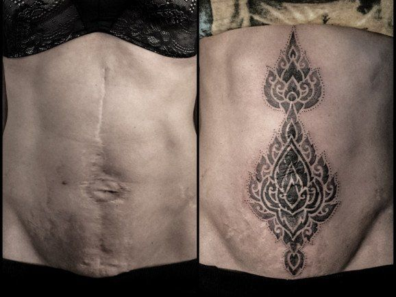 You can 39 t erase scars but wearing a masterpiece can help for Tattoos to cover scars on stomach