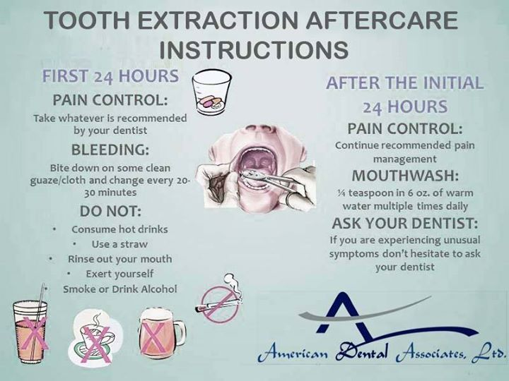 Tooth Extraction Aftercare Instructions Dental Care Pinterest