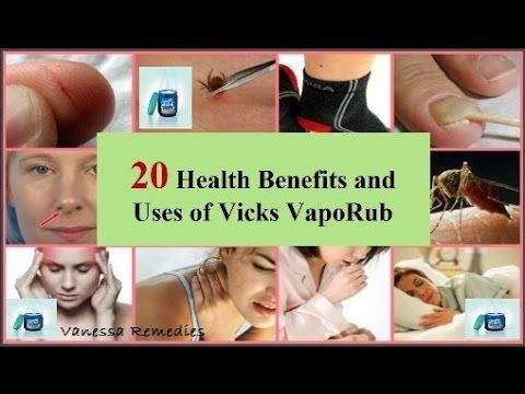 Here are Top 20 health benefits and uses of Vicks VapoRub. Please  subscribe: https://www.youtube.com/user/VanessaR... Music by  http://www.freesfx.co.uk