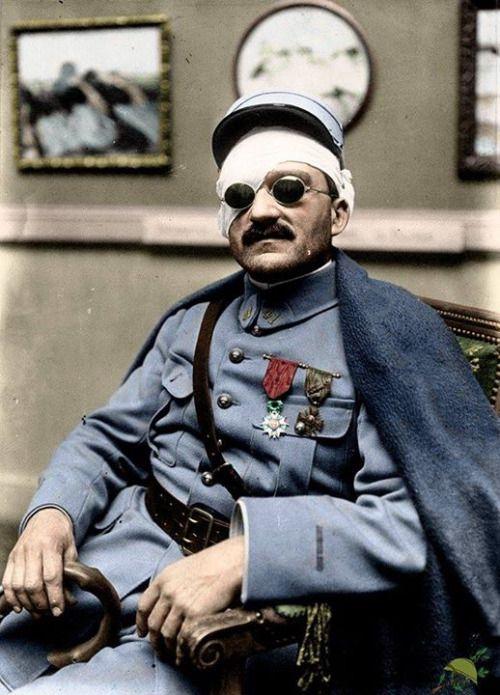 historywars:    The artist Jean-Julien Lemordant injured during WW1. Colorized by Jean Marie Gillet.Picture taken in 1917.