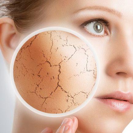 Si tienes la piel seca y descamada, te invitamos a visitar nuestro nuevo artículo, como mejorar la piel seca. http://www.nannic.es/blog/cuidados-de-la-piel/como-mejorar-la-piel-seca-y-descamada-2/