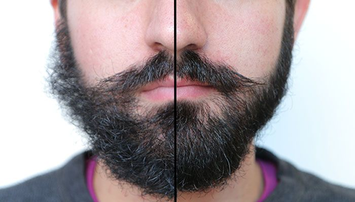 Make facial hair more visible #3