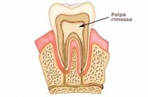 Carie, pulpite e lesioni provocano la morte del dente. Con la devitalizzazione si rimuove la polpa e salvando il dente naturale.