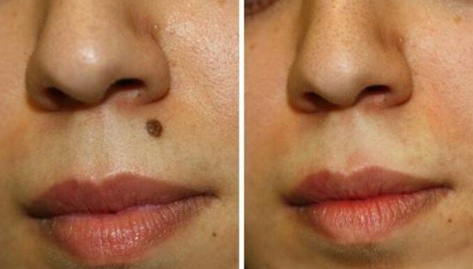 Most People Have Moles This Is The Result Of Having Too Much Melanocytes On The Skin If In Case You Are Not Familiar Wi Skin Moles Moles On Face Mole Removal