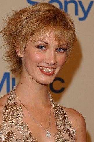 Celebrities Wearing Braces (33 pics)