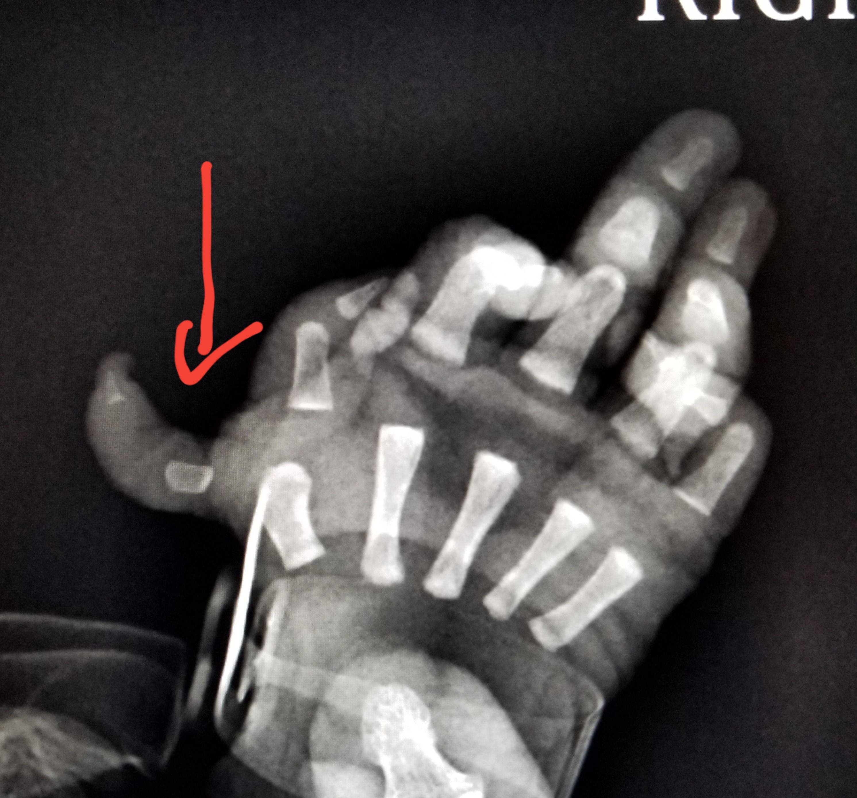 Baby Newborn Xray Hand Xray In An Infant Shows An Extra Finger