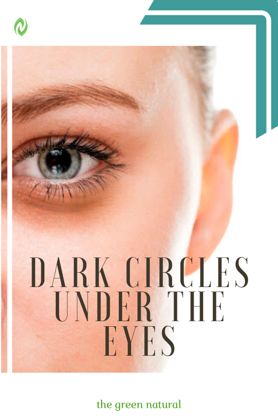 Dark circles under the eyes:Causes and treatments in 2020 ...