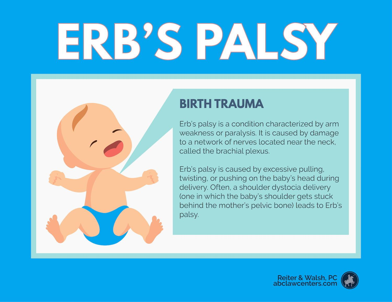 Erb S Palsy Amp Brachial Plexus Injuries Plexus Products