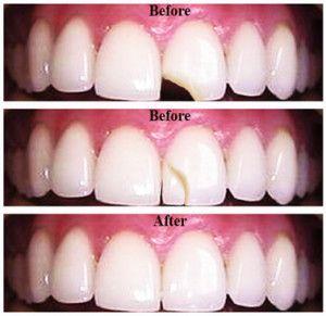 EmmertDental Emmert Dental BethelPark PA Veneers Teeth Heath