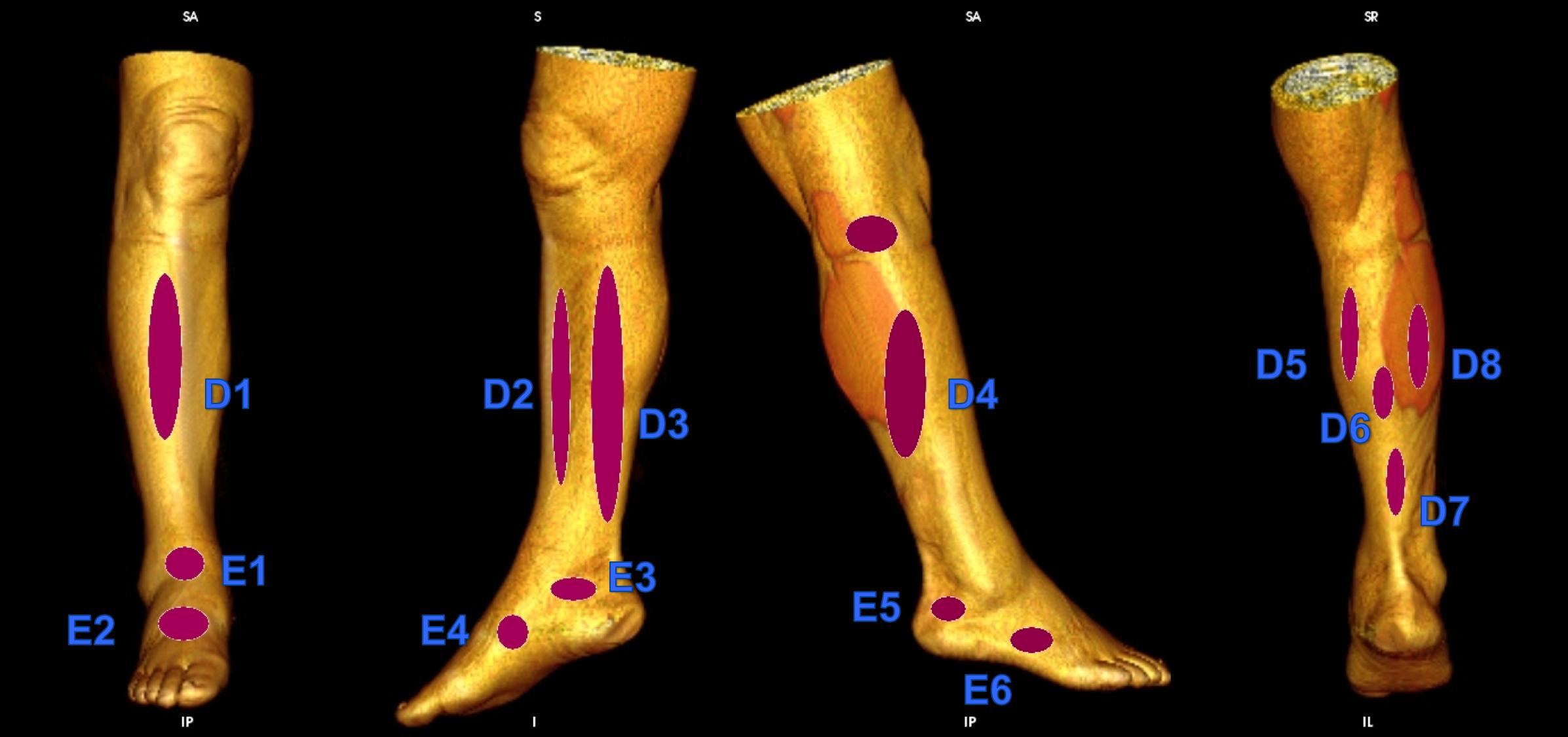 D1 Anterior Leg Perforator D2 Paratibial Perforator D3