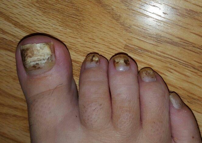 Psoriasis in my toenails    Health: Psoriatic Arthritis