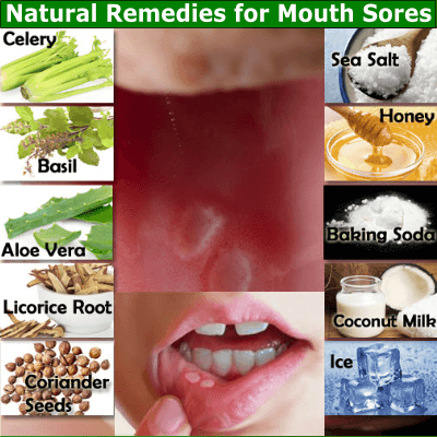 Natural Remedies For Mouth Sores Ulcer Remedies Mouth Mouth