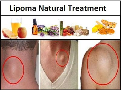 Lipoma Natural Treatment and Dietary Changes   Natural ...