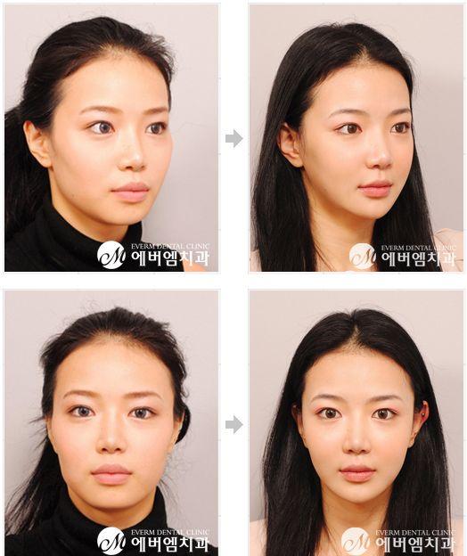 Operasi Tulang Rahang جراحة عظام الفك With Images Beauty