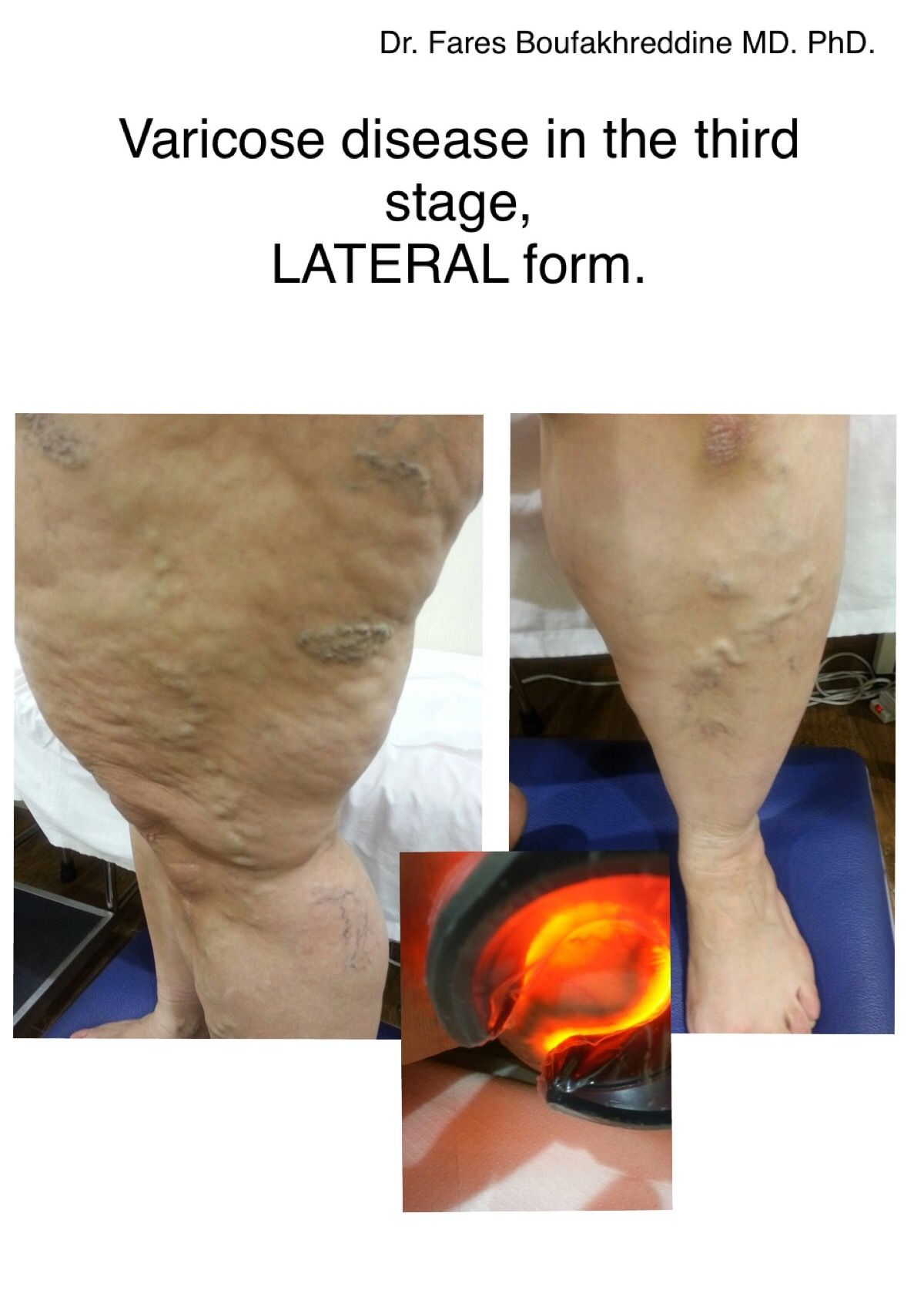 How To Get My Veins To Show For Plasma