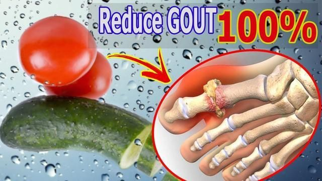 [GOUT TREATMENT] How To Cure Gout Naturally At Home With Cucumber And Tomato In…
