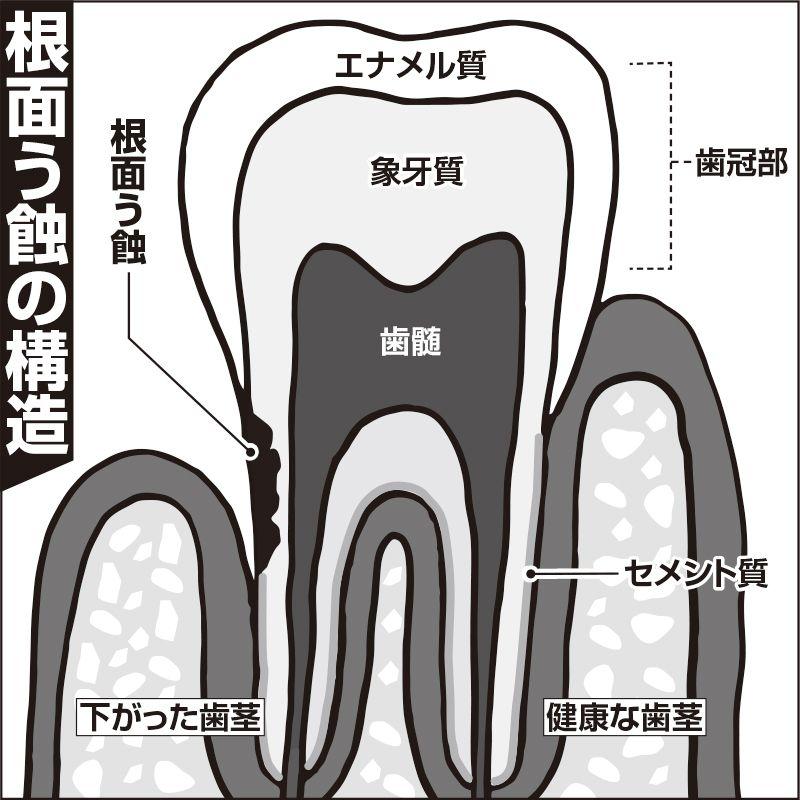 大人の虫歯ケア 歯茎が下がる 根面う蝕 を予防する歯の最新ケア方法 50代以上は要注意 1 1 介護ポストセブン う蝕 歯茎が下がる 虫歯