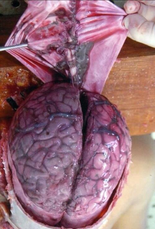 vista anterior de cerebro y vasos sanguineos   Органы наши ...