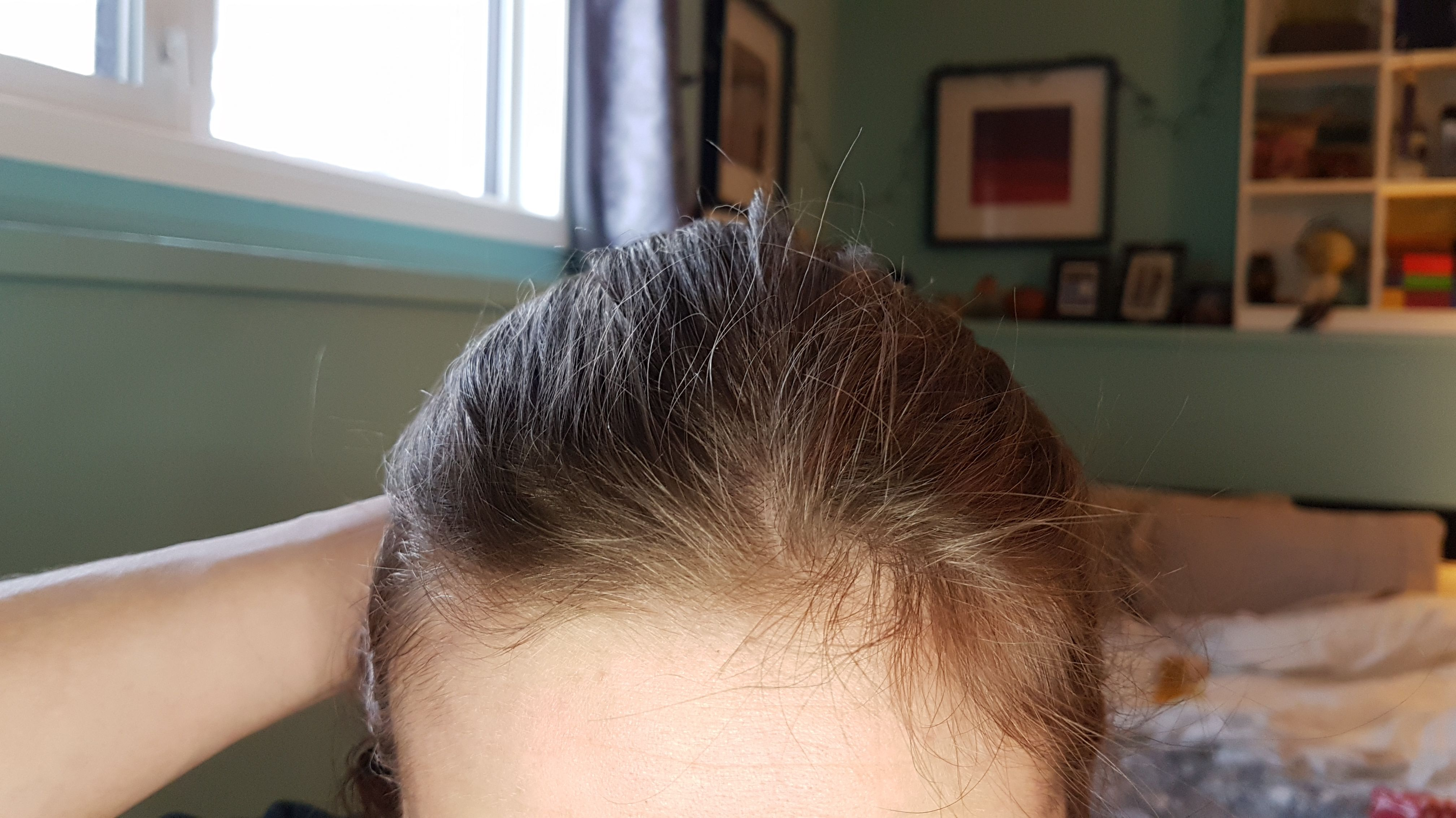 My hairline has always been weird like this. Does anyone