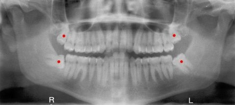It's a good thing you kept those 3rd molars said no hygienist ever.