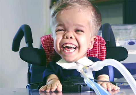 6-year-old Charlie has a rare form of dwarfism Watch how UVA - biomedical engineering job description