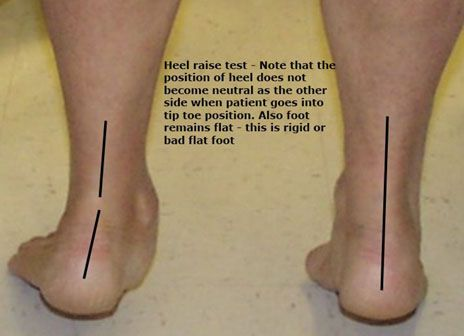 955cde4af7bd5 A flat foot is a condition of the foot where foot looses its normal arch.