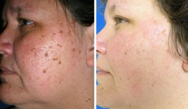 Before And After Cosmetic Mole Removal Skin Spot Remover Blue Light Therapy Skin Laser Skin Care