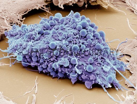 Human mesenchymal stem cell #anatomy #microscope #microscopic ...