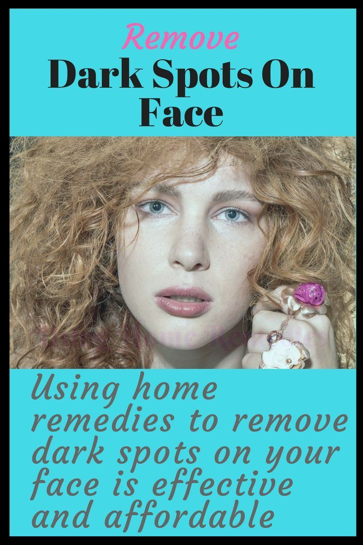 How to get rid of age spots on the face using shop bought