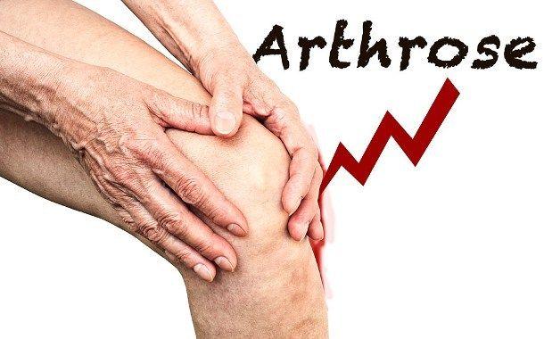 Knie- und Gelenkschmerzen in 5 Tagen los werden! (mit..