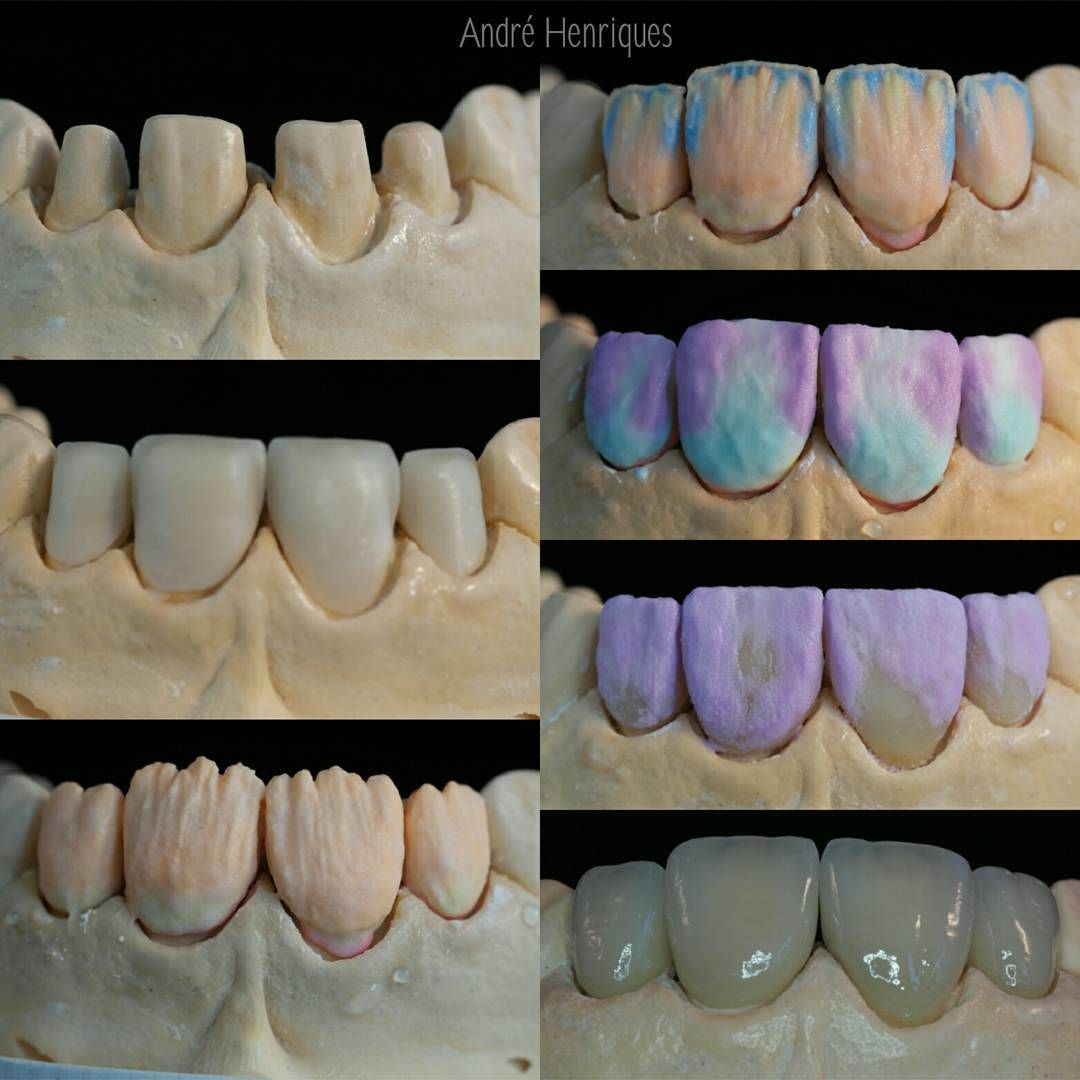 From Start To End Zirconia Crowns Alldent Alldental Teeth Tooth Toothless Extraction Cirugiabucal Extractions Denta Arte Dental Estetica Dental Dental