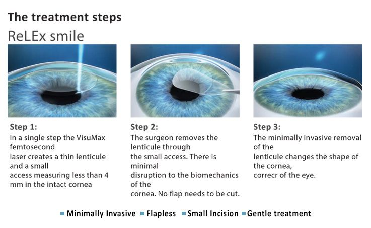 Treatment Steps Laser Vision Correction Lasik Eye Surgery Lasik