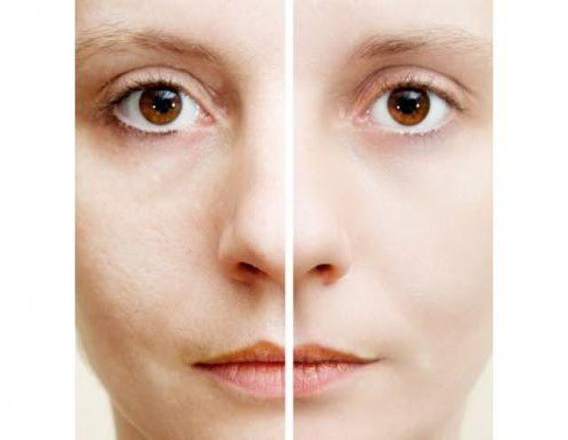 Σπιτική συνταγή για να εξαλείψετε τις ρυτίδες Μια άκρως αποτελεσματική και φυσική λύση για να σφίξετε το δέρμα σας και να δώσετε μια νεανική εμφάνιση, είναι ο συνδυασμός γιαουρτιού και χυμού λεμονιού. Η σπιτική συνταγή που ακολουθεί θα σας βοηθήσει να εξαλείψετε τις ρυτίδες και να συσφίξετε το χαλαρό δέρμα στο πρόσωπο. Θα χρειαστείτε: –