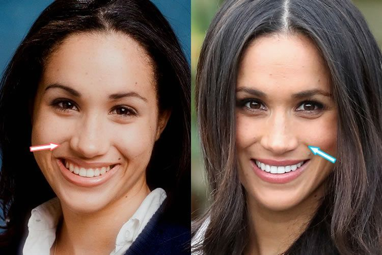 Markle Plastic Surgery – Nose Job, Teeth - before and after