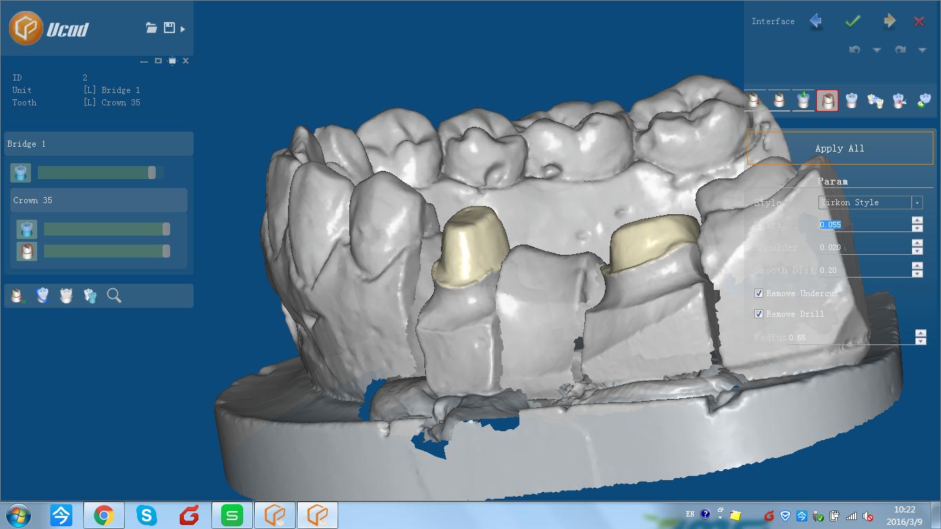 UP3D 3d dental scanner CAD for design and creation of dental ...