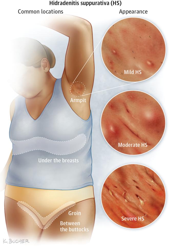 REVEALED! Top 6 Most Inflammatory Foods That Exacerbate Your Hidradenitis Suppurativa in 2020 | Hidradenitis suppurativa remedies, Skin disorders, Wound care nursing