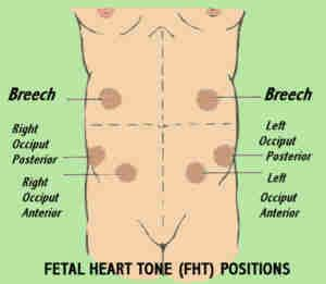Fetal Heart Tone Positions Repinning Because I Miss These Every