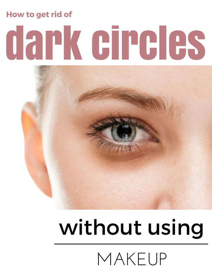 How to get rid of dark circles without using makeup dark