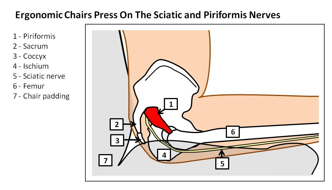 ergonomic sciatica piriformis syndrome | Health & Fitness ...