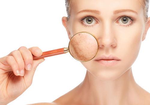 naturist treats acne Adult