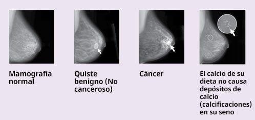 Ilustración de lo que se ve en una mamografía: mamografía ...