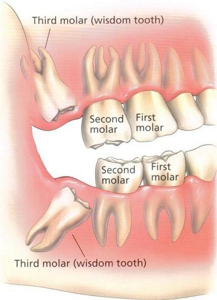 Your Wisdom Teeth Wisdom Teeth Are Your Last Or Third Row Of Molars They Were Called Wisdom Teeth Because Wisdom Teeth Wisdom Teeth Removal Recovery Teeth